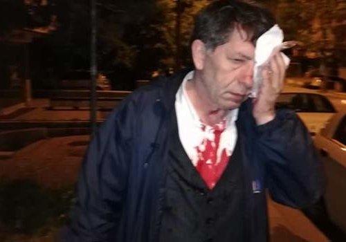 Gazeteci Yavuz Selim Demirağ saldırıya uğradı...